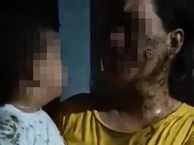 Phẫn nộ hành động đổ phân lên người bé 2 tuổi vì mâu thuẫn giữa người lớn